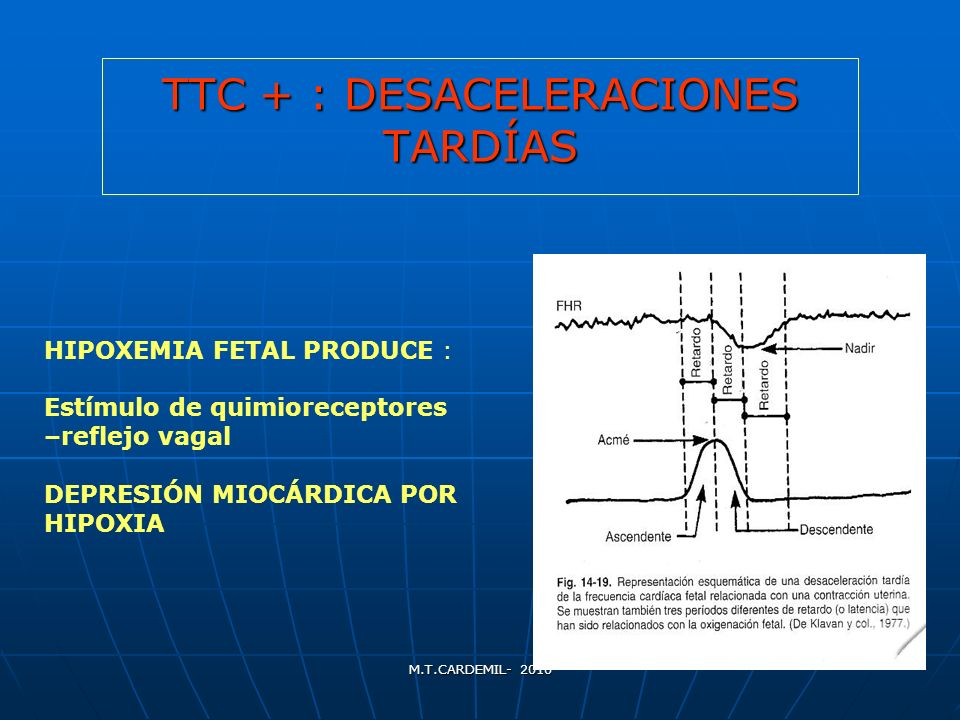 TTC + : DESACELERACIONES TARDÍAS