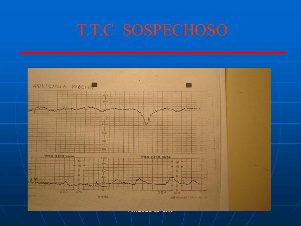 T.T.C SOSPECHOSO M.T.CARDEMIL- 2010