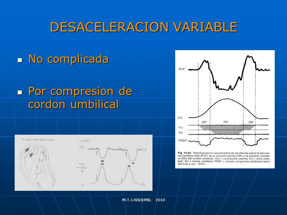 DESACELERACION VARIABLE