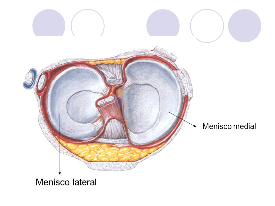 Menisco medial Menisco lateral
