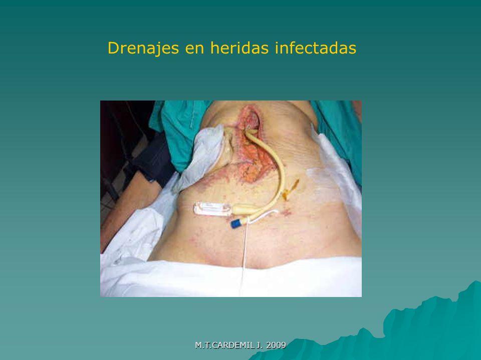 Drenajes en heridas infectadas