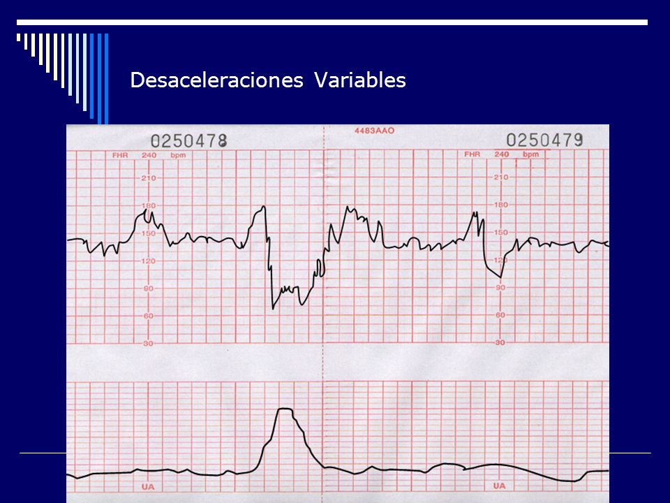 Desaceleraciones Variables