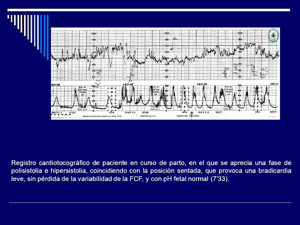 Registro cardiotocográfico de paciente en curso de parto, en el que se aprecia una fase de polisistolia e hipersistolia, coincidiendo con la posición sentada, que provoca una bradicardia leve, sin pérdida de la variabilidad de la FCF, y con pH fetal normal (7 33).