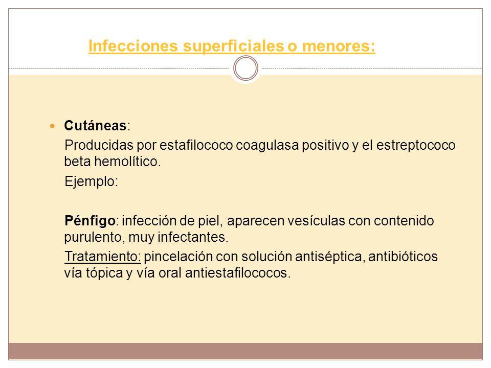 Infecciones superficiales o menores:
