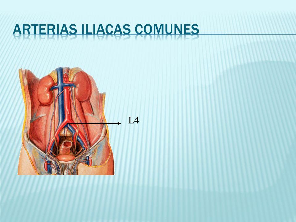 Arterias iliacas Comunes