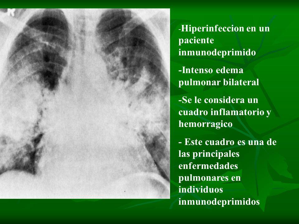 -Intenso edema pulmonar bilateral