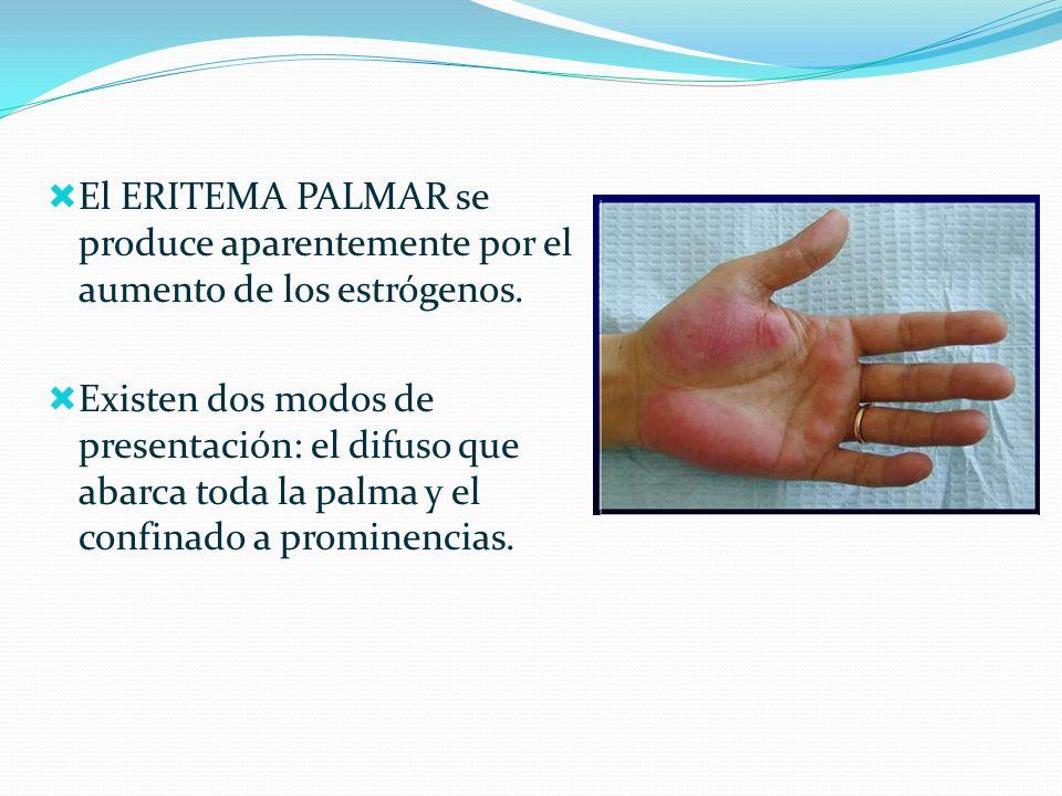El ERITEMA PALMAR se produce aparentemente por el aumento de los estrógenos.