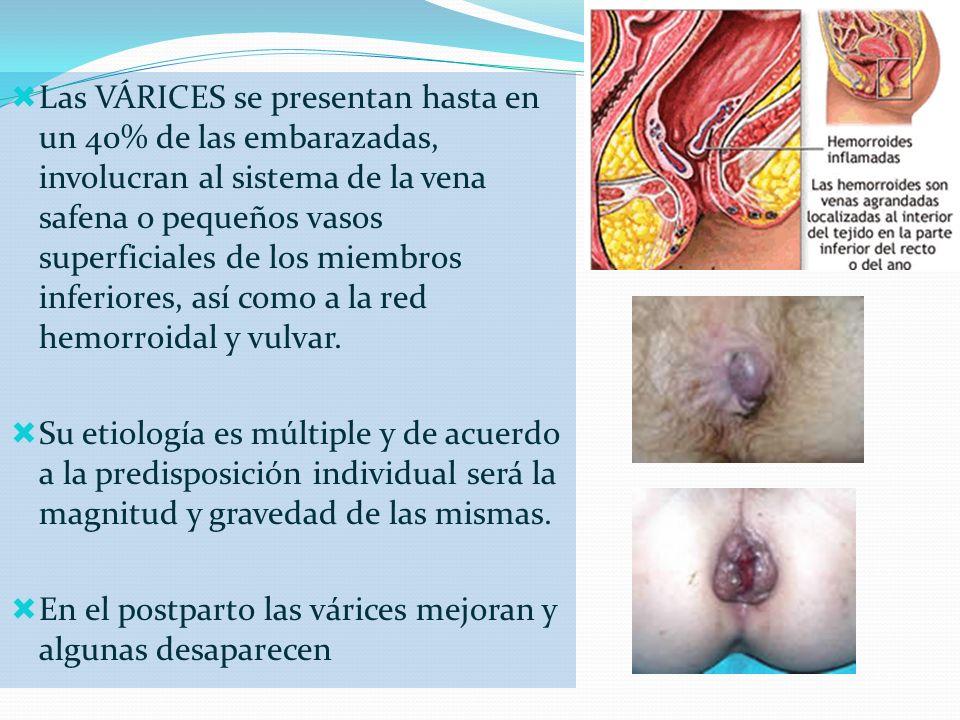 Las VÁRICES se presentan hasta en un 40% de las embarazadas, involucran al sistema de la vena safena o pequeños vasos superficiales de los miembros inferiores, así como a la red hemorroidal y vulvar.
