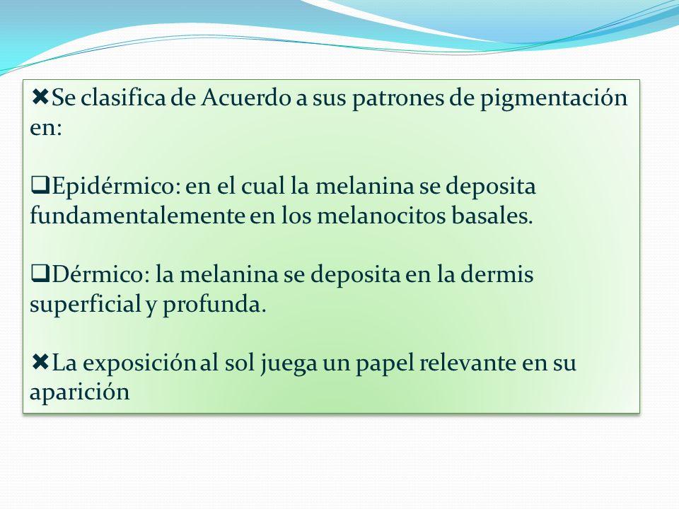 Se clasifica de Acuerdo a sus patrones de pigmentación en: