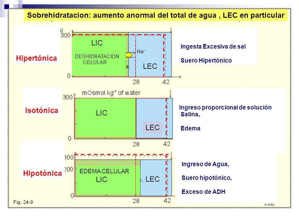 Sobrehidratacion: aumento anormal del total de agua , LEC en particular