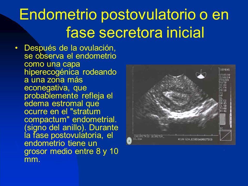 Endometrio postovulatorio o en fase secretora inicial