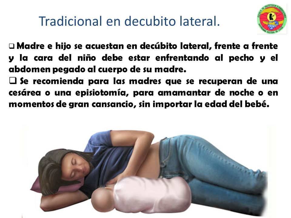 Tradicional en decubito lateral.