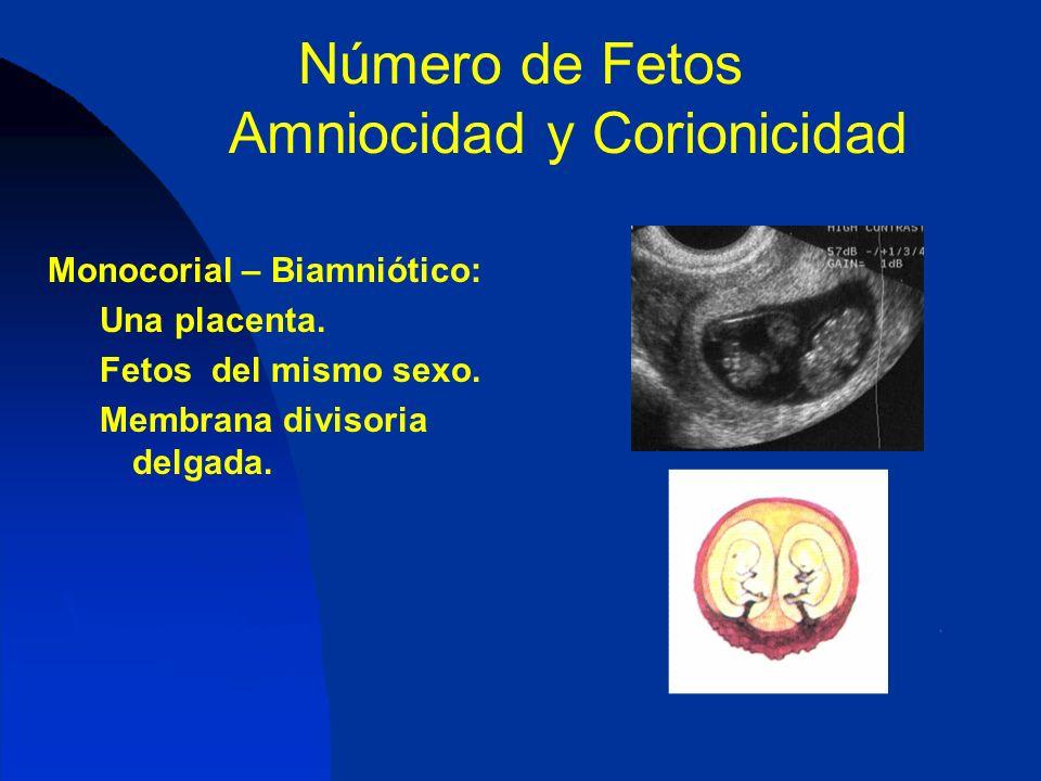 Número de Fetos Amniocidad y Corionicidad