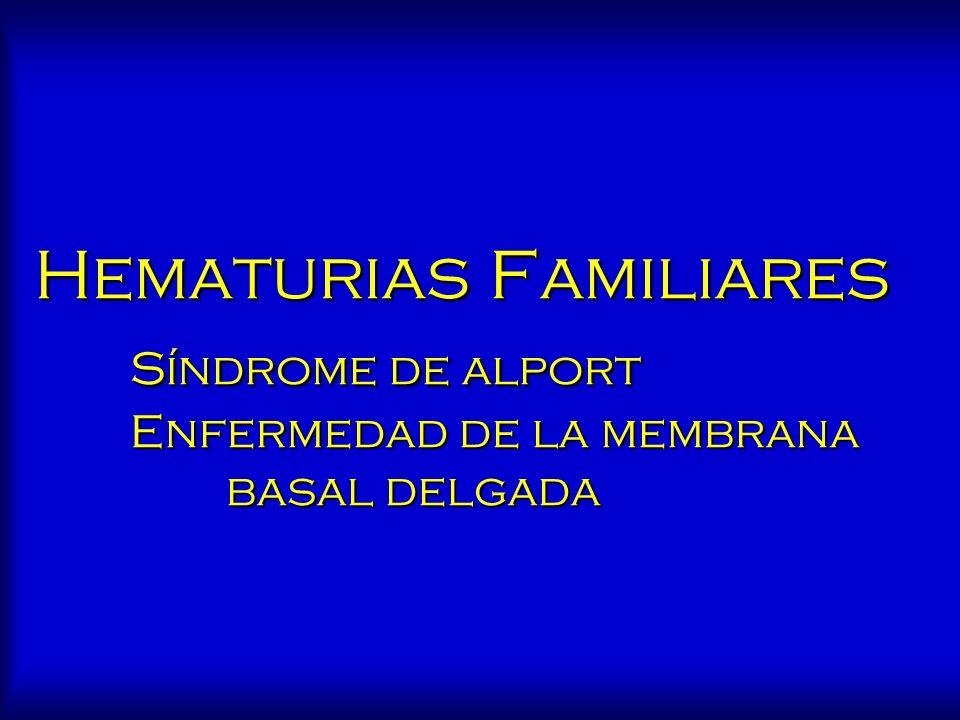 Hematurias Familiares. Síndrome de alport. Enfermedad de la membrana