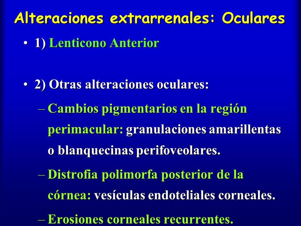 Alteraciones extrarrenales: Oculares