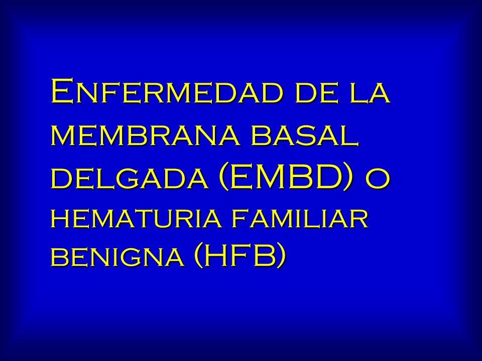 Enfermedad de la membrana basal delgada (EMBD) o hematuria familiar benigna (HFB)