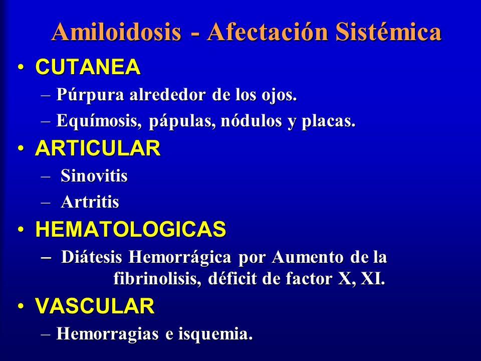 Amiloidosis - Afectación Sistémica