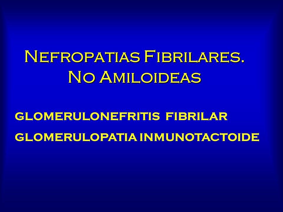 Nefropatias Fibrilares. No Amiloideas