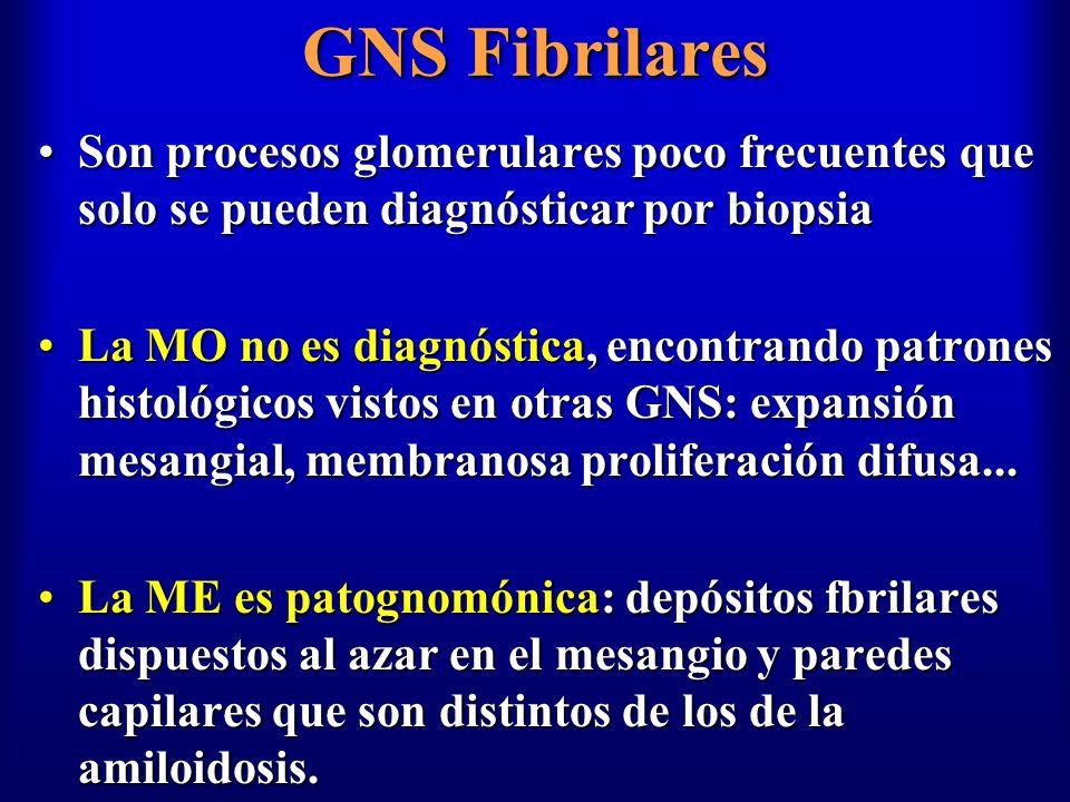 GNS Fibrilares Son procesos glomerulares poco frecuentes que solo se pueden diagnósticar por biopsia.