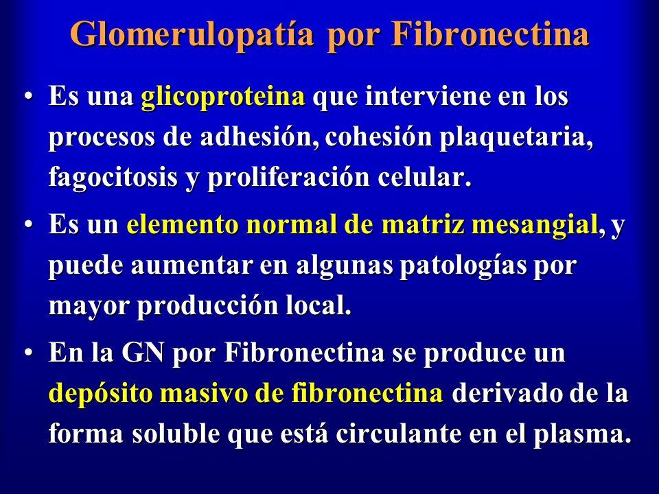 Glomerulopatía por Fibronectina