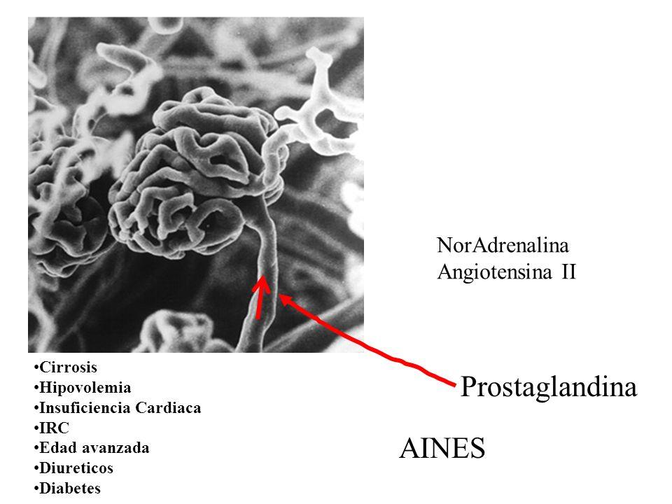Prostaglandina AINES NorAdrenalina Angiotensina II Cirrosis