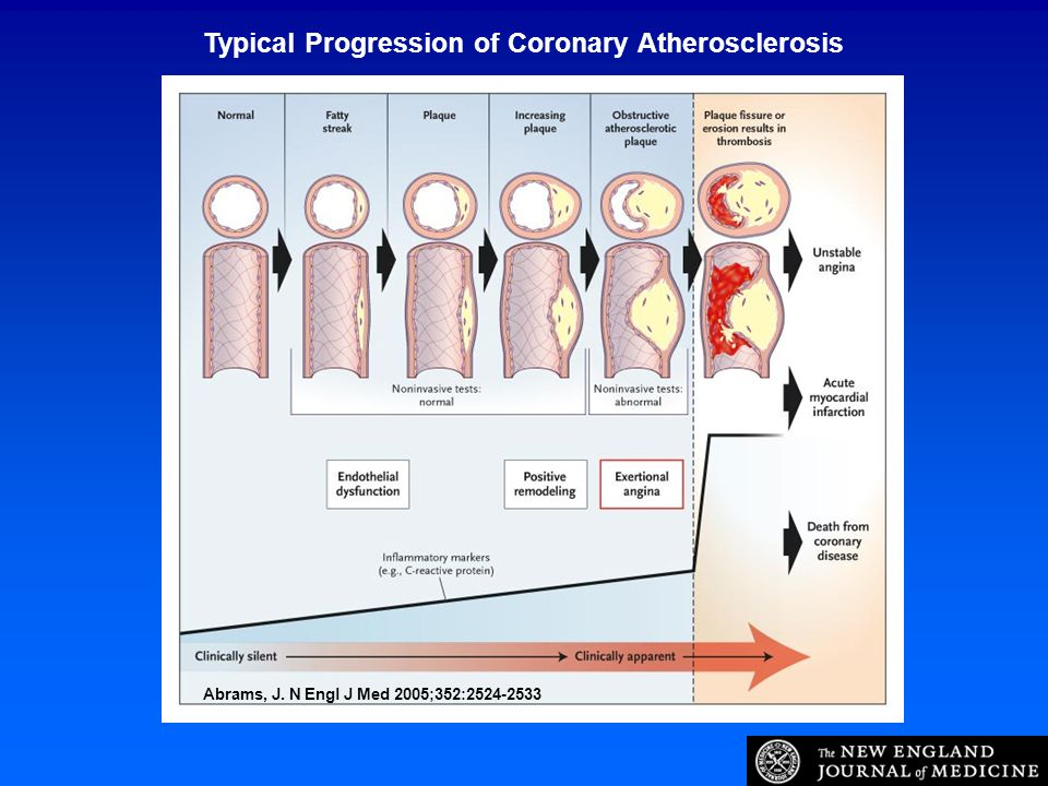 Typical Progression of Coronary Atherosclerosis