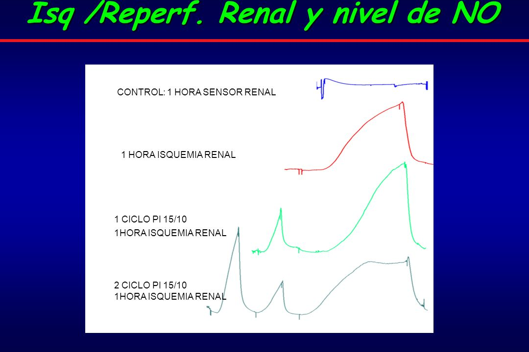 Isq /Reperf. Renal y nivel de NO