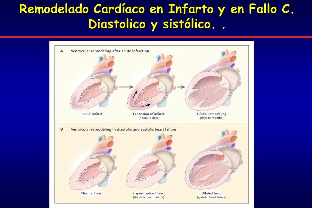 Remodelado Cardíaco en Infarto y en Fallo C. Diastolico y sistólico. .