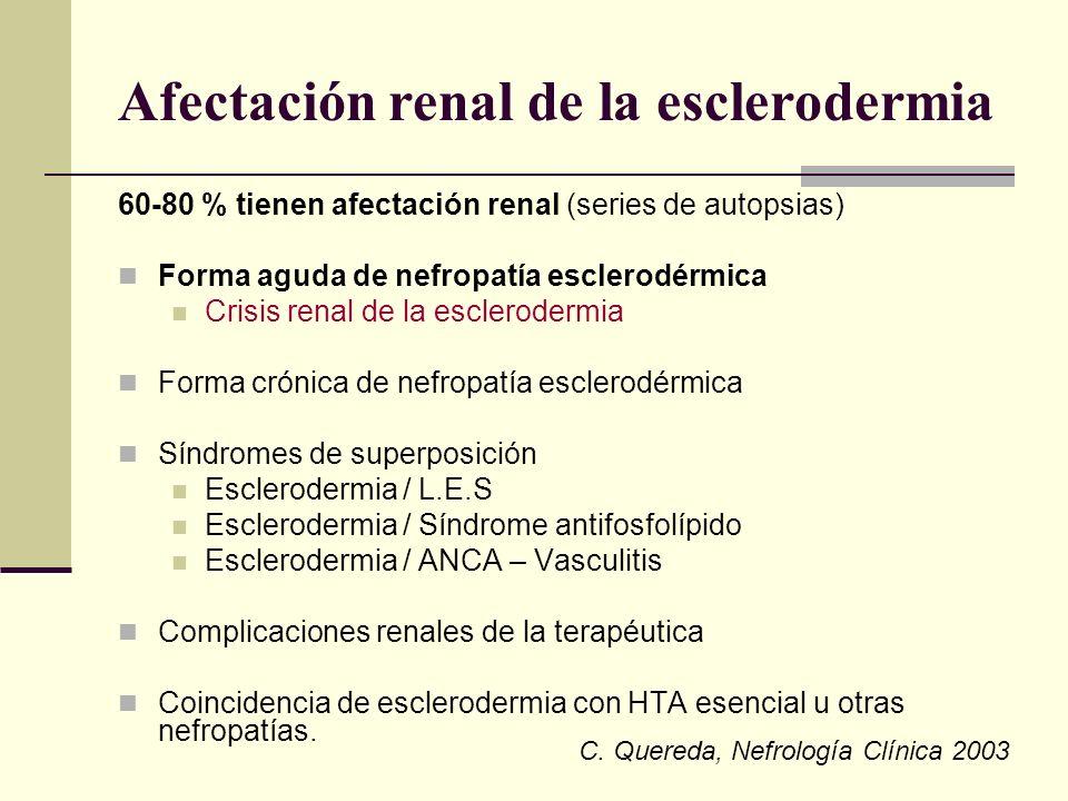 Afectación renal de la esclerodermia