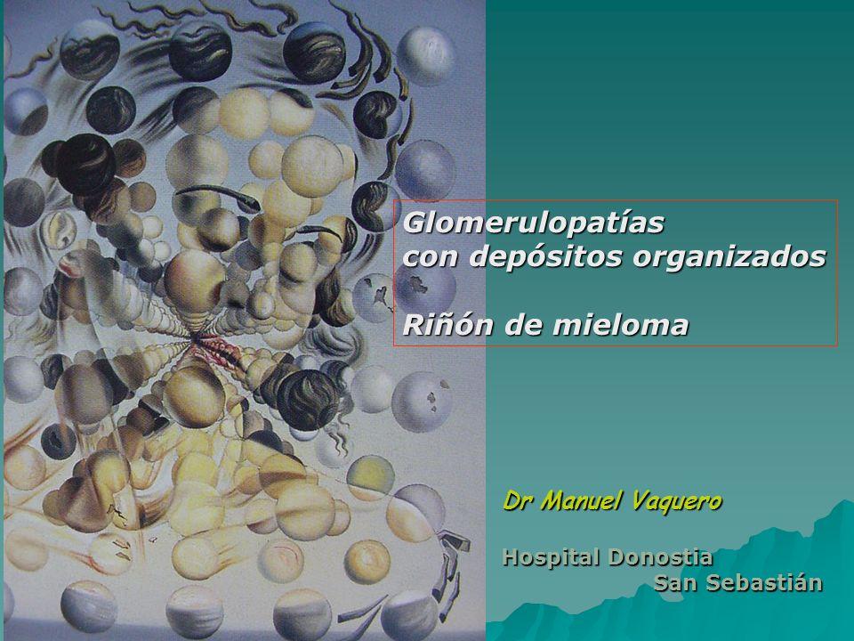 con depósitos organizados Riñón de mieloma