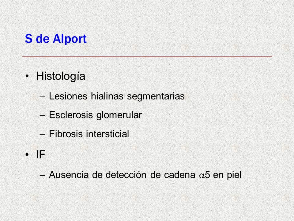 S de Alport Histología IF Lesiones hialinas segmentarias