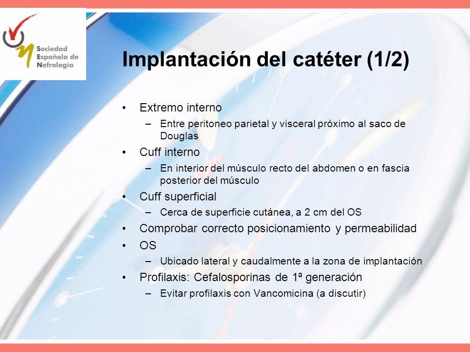 Implantación del catéter (1/2)