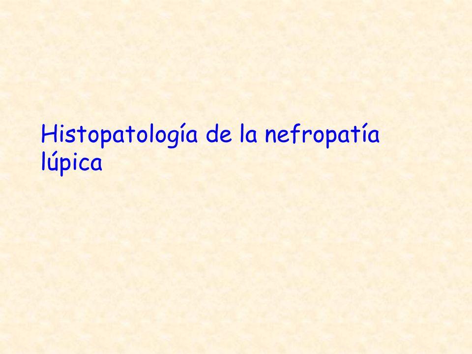 Histopatología de la nefropatía lúpica