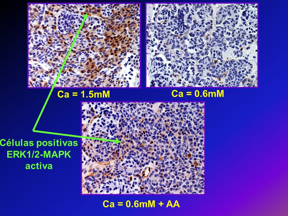 Células positivas ERK1/2-MAPK activa