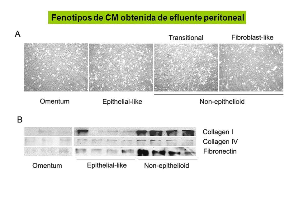 Fenotipos de CM obtenida de efluente peritoneal