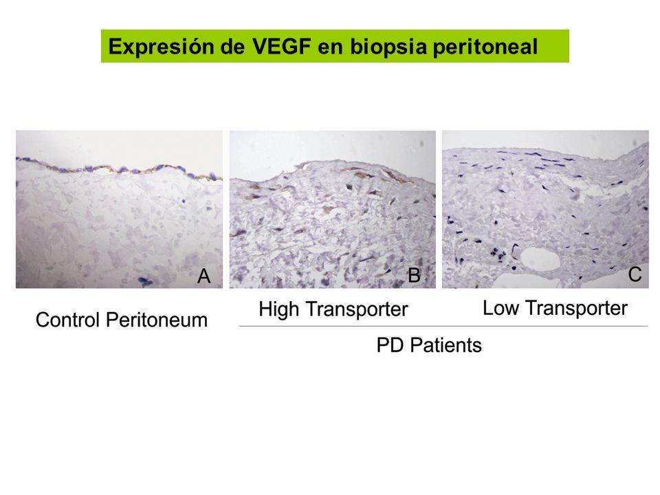 Expresión de VEGF en biopsia peritoneal