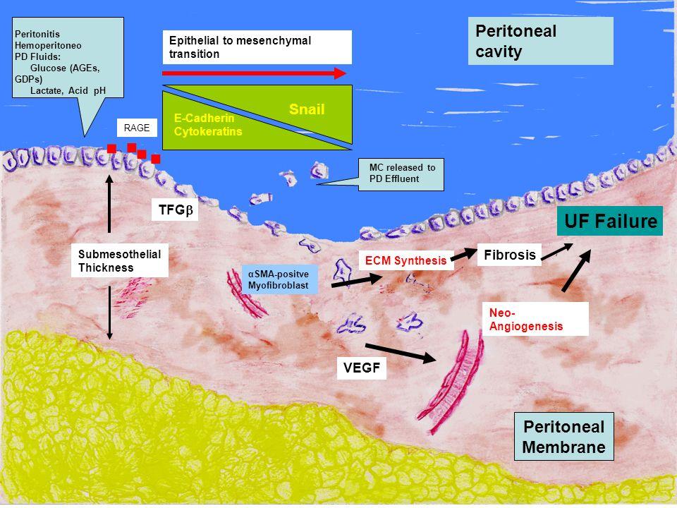 . . . . UF Failure Peritoneal cavity Peritoneal Membrane Snail TFG