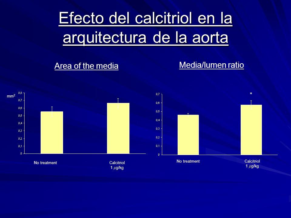 Efecto del calcitriol en la arquitectura de la aorta