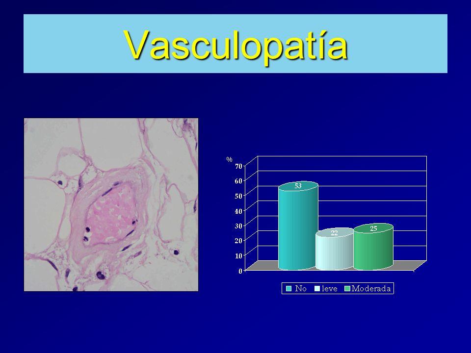 Vasculopatía