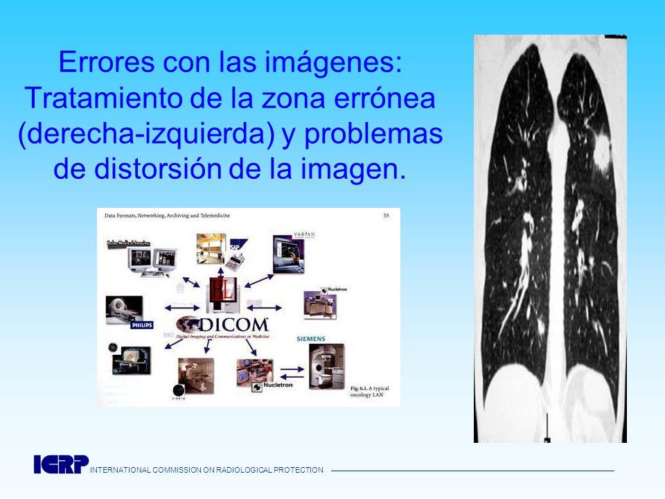 Errores con las imágenes: Tratamiento de la zona errónea (derecha-izquierda) y problemas de distorsión de la imagen.