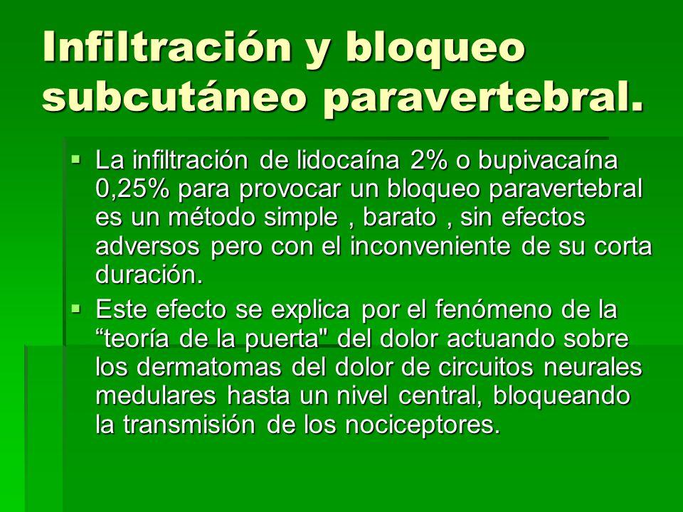 Infiltración y bloqueo subcutáneo paravertebral.
