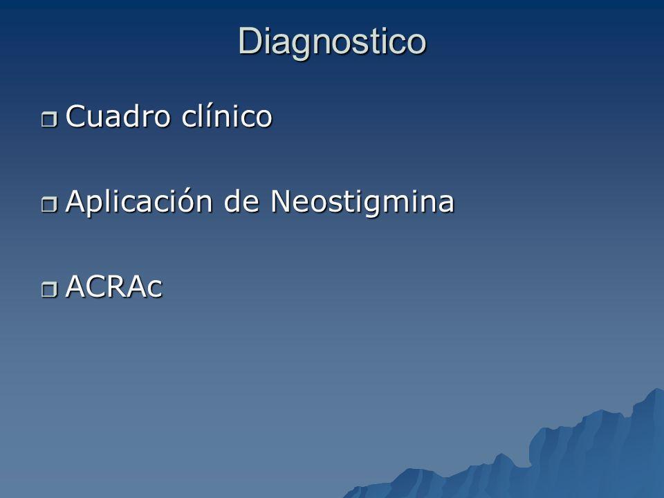 Diagnostico Cuadro clínico Aplicación de Neostigmina ACRAc