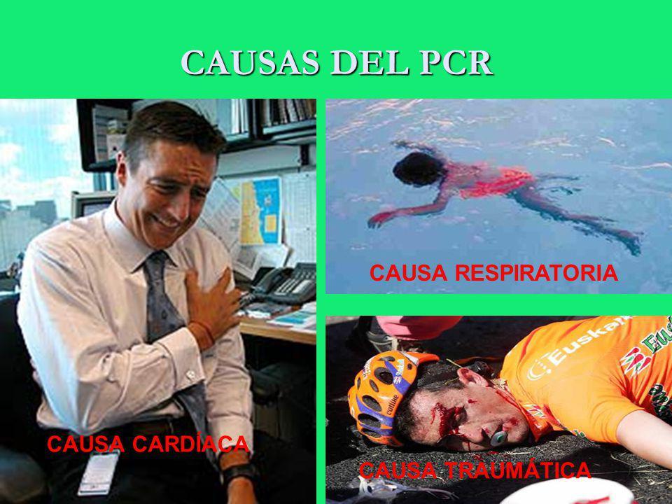 CAUSAS DEL PCR CAUSA RESPIRATORIA CAUSA CARDÍACA CAUSA TRAUMÁTICA