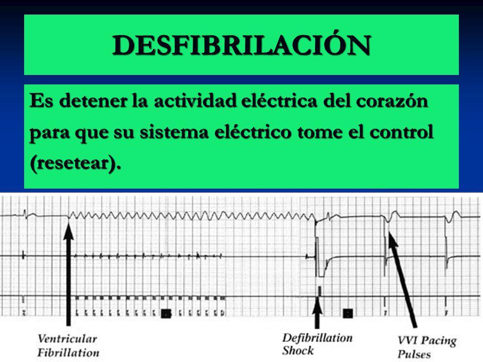 DESFIBRILACIÓN Es detener la actividad eléctrica del corazón