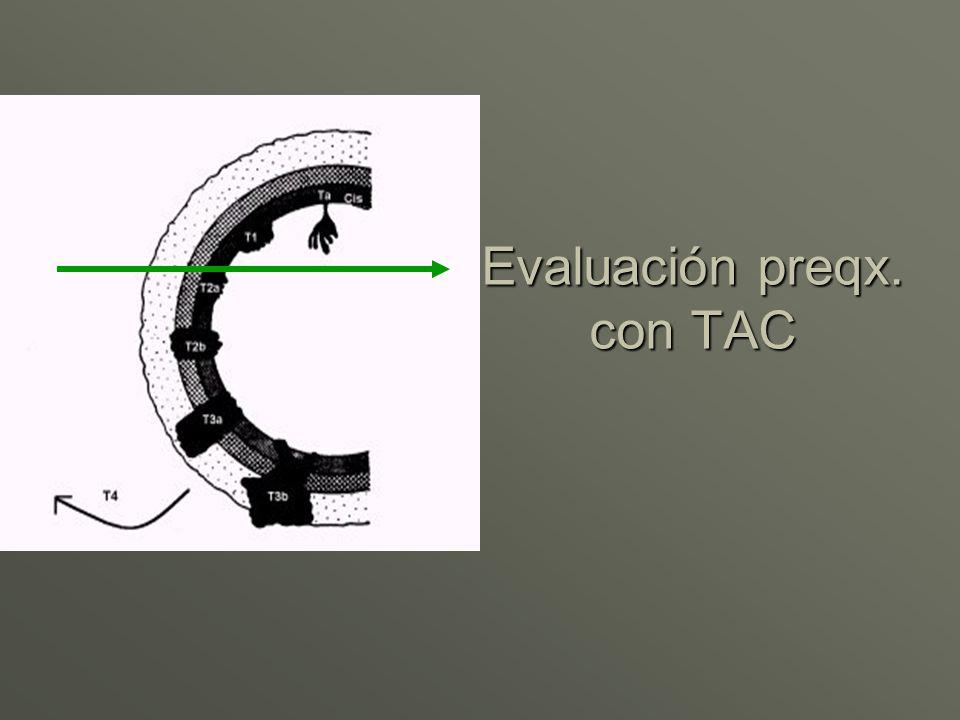 Evaluación preqx. con TAC