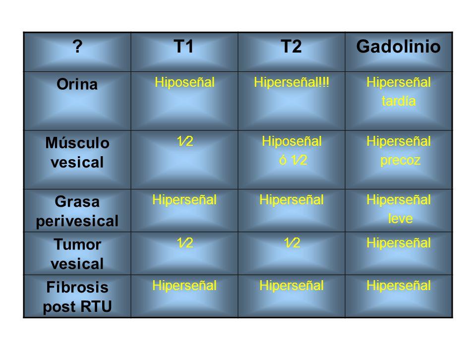 T1 T2 Gadolinio Orina Músculo vesical Grasa perivesical