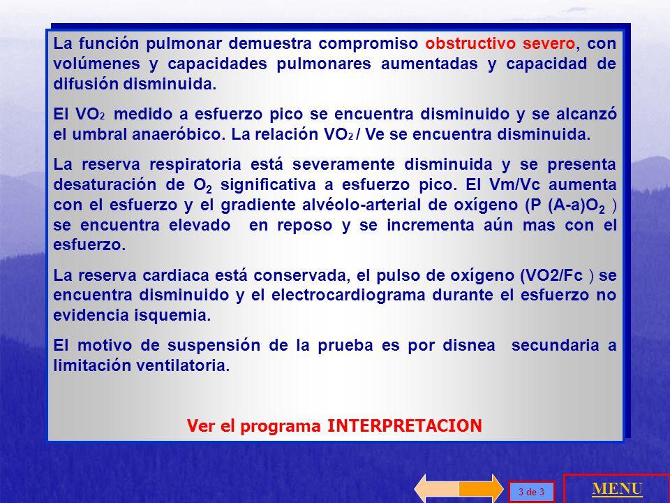 Ver el programa INTERPRETACION