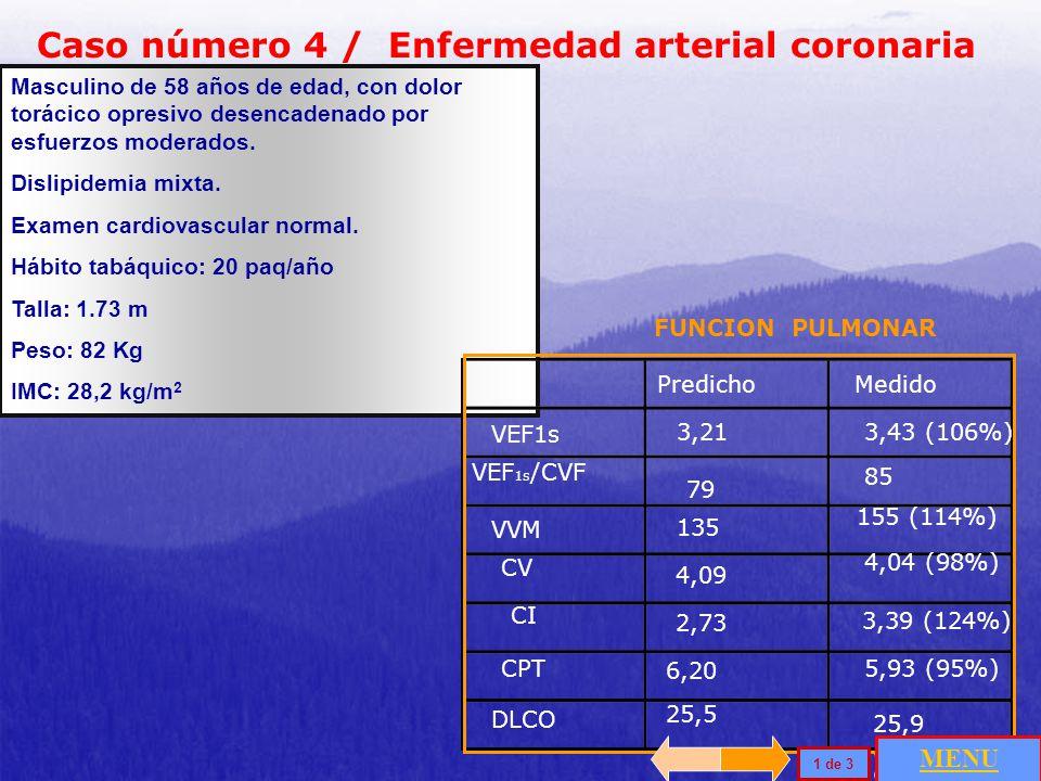 Caso número 4 / Enfermedad arterial coronaria