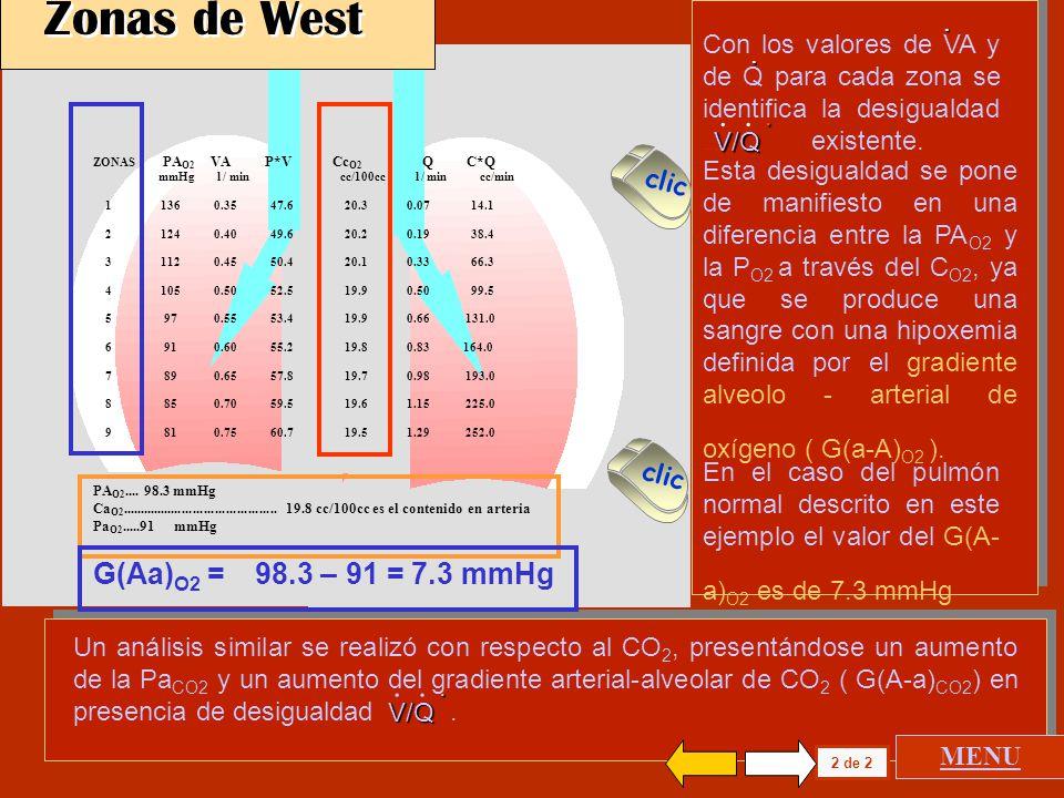 Zonas de West G(Aa)O2 = 98.3 – 91 = 7.3 mmHg .