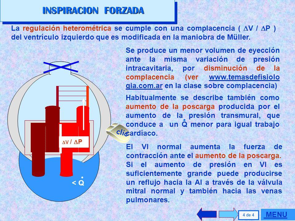INSPIRACION FORZADA